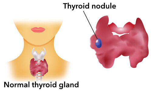 malfunction of thyroid gland