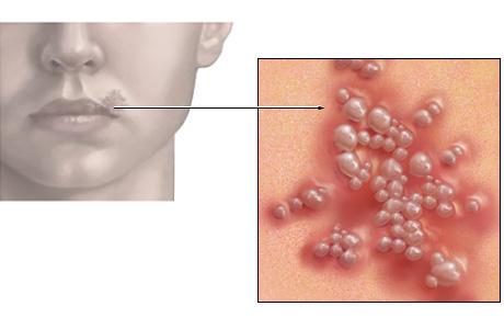 HERPES SYMPLEX VIRUS