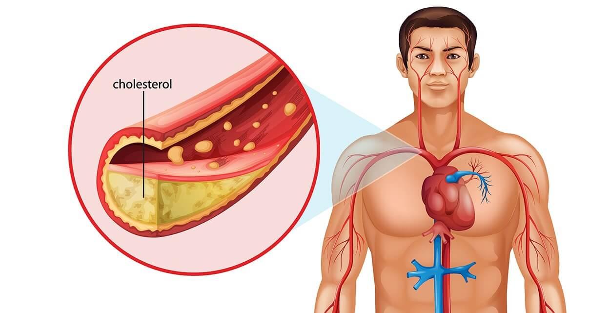 5 Most Popular Cholesterol-Lowering Pills